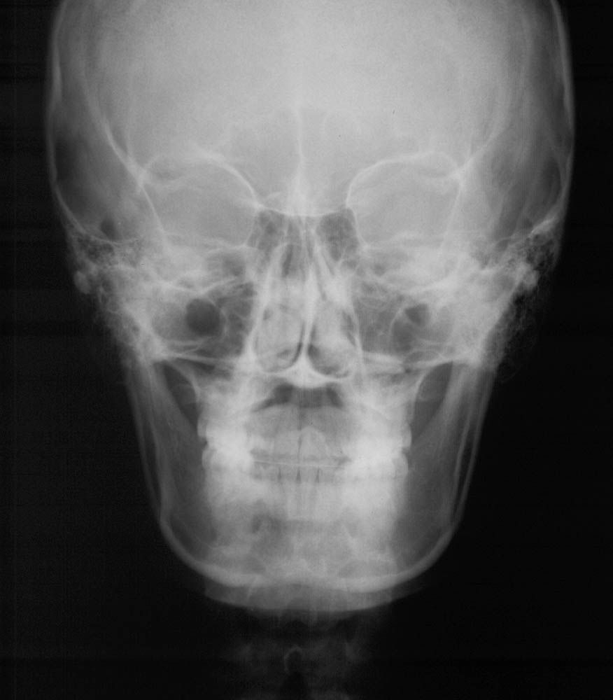 PA skull x ray diagnostic imaging nw
